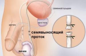 Мужская стерилизация (вазэктомия)